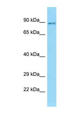 SLC26A6 antibody Western blot of PANC1 Cell lysate. Antibody concentration 1 ug/ml.  This image was taken for the unconjugated form of this product. Other forms have not been tested.
