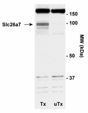 Detection of Slc26a7. Tx: Okp cells transiently transfected with mouse Slc26a7 UTX: untransfected Okp cells.  This image was taken for the unconjugated form of this product. Other forms have not been tested.