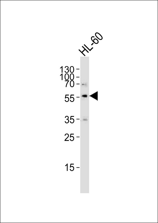 Western blot of lysate from HL-60 cell line, using ENT1(Slc29a1) Antibody. Antibody was diluted at 1:1000. A goat anti-rabbit IgG H&L (HRP) at 1:5000 dilution was used as the secondary antibody. Lysate at 35ug.