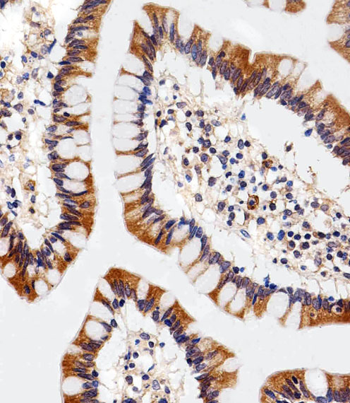 SLC29A1 / ENT1 Antibody - Immunohistochemical of paraffin-embedded H. colon section using ENT1(Slc29a1). Antibody was diluted at 1:25 dilution. A peroxidase-conjugated goat anti-rabbit IgG at 1:400 dilution was used as the secondary antibody, followed by DAB staining.
