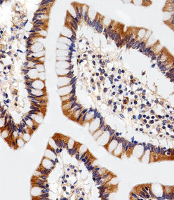 Immunohistochemical of paraffin-embedded H. colon section using ENT1(Slc29a1). Antibody was diluted at 1:25 dilution. A peroxidase-conjugated goat anti-rabbit IgG at 1:400 dilution was used as the secondary antibody, followed by DAB staining.