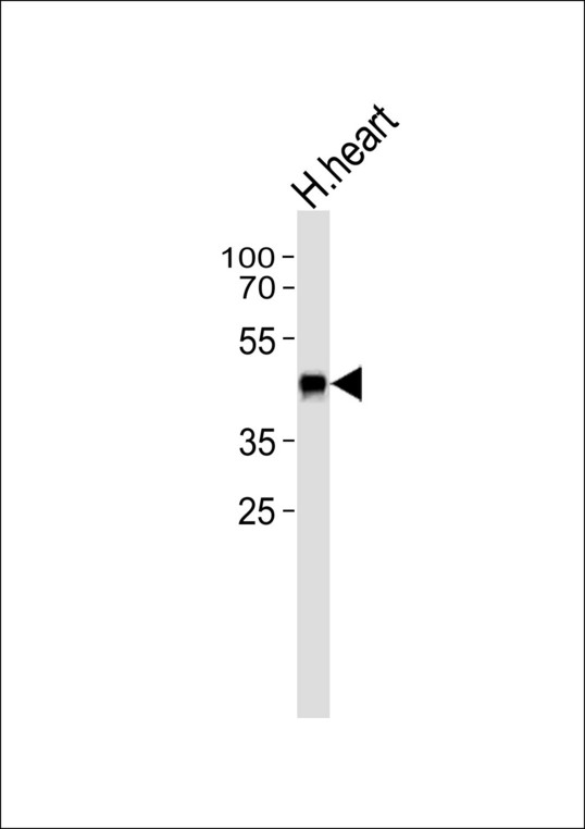 SLC29A1 / ENT1 Antibody - Western blot of lysate from human heart tissue lysate, using ENT1(Slc29a1) Antibody. Antibody was diluted at 1:1000. A goat anti-rabbit IgG H&L (HRP) at 1:5000 dilution was used as the secondary antibody. Lysate at 35ug.