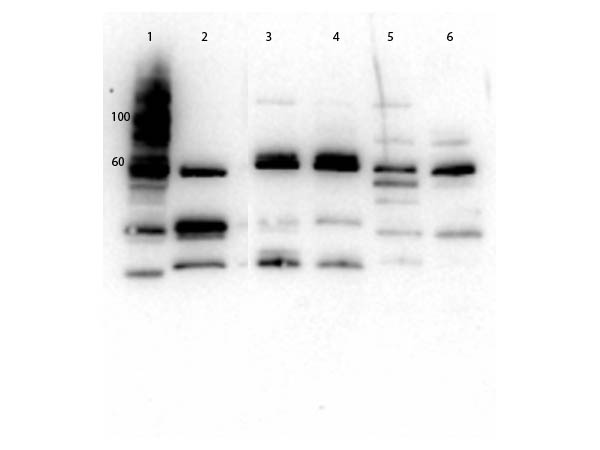 SLC2A2 / GLUT2 Antibody - Western Blot of rabbit Anti-Glut2 Antibody. Lane 1: Molecular Weight. Lane 2: Mouse Kidney WCL. Lane 3: MEF WCL. Lane 4: 3T3 WCL. Lane 5: HeLa WCL. Lane 6: HEK293 WCL. Load: 20µg per pane. Primary antibody: 1µg/mL blocked with MB-073 overnight at 2-8°C. Secondary Antibody: Goat anti-Rabbit HRP 1:40,000 diluted with MB-073 for 30 minutes at RT. Expect: ~57.1 kDa.