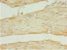 SLC2A4 / GLUT-4 Antibody - Immunohistochemistry of paraffin-embedded human skeletal muscle tissue using antibody at 1:100 dilution.  This image was taken for the unconjugated form of this product. Other forms have not been tested.