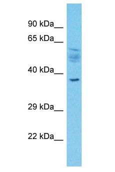 SLC2A4RG / GEF antibody Western Blot of Esophagus Tumor. Antibody dilution: 1 ug/ml.  This image was taken for the unconjugated form of this product. Other forms have not been tested.