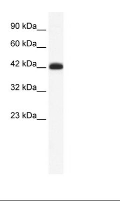 Jurkat Cell Lysate.  This image was taken for the unconjugated form of this product. Other forms have not been tested.