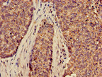 Immunohistochemistry of paraffin-embedded human ovarian cancer using SLC2A9 Antibody at dilution of 1:100