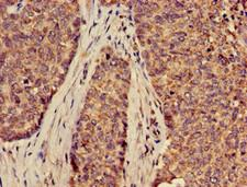 SLC2A9 / GLUT9 Antibody - Immunohistochemistry of paraffin-embedded human ovarian cancer using SLC2A9 Antibody at dilution of 1:100