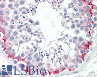 Anti-SLC30A9 / ZNT9 antibody IHC staining of human testis. Immunohistochemistry of formalin-fixed, paraffin-embedded tissue after heat-induced antigen retrieval. Antibody LS-B9652 concentration 10 ug/ml.  This image was taken for the unconjugated form of this product. Other forms have not been tested.