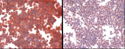 SLC31A1 / CTR1 Antibody - The photo on the left is antibody staining of hCTR1 overexpressing cell line. The photo on the right is antibody plus peptide competition staining.  This image was taken for the unconjugated form of this product. Other forms have not been tested.