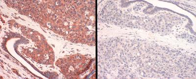 SLC31A1 / CTR1 Antibody - Panel 1: human CTR1 staining of breast cancer tissue. Panel 2: human CTR1-antigen competition in breast cancer tissue.  This image was taken for the unconjugated form of this product. Other forms have not been tested.