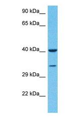 Western blot of S35D1 Antibody with human Ovary Tumor lysate.  This image was taken for the unconjugated form of this product. Other forms have not been tested.