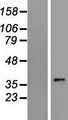 SLC35E3 Protein - Western validation with an anti-DDK antibody * L: Control HEK293 lysate R: Over-expression lysate