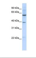 SLC35F3 Antibody - 721_B cell lysate. Antibody concentration: 1.0 ug/ml. Gel concentration: 12%.  This image was taken for the unconjugated form of this product. Other forms have not been tested.
