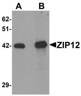 SLC39A12 / ZIP12 Antibody - Western blot analysis of ZIP12 in HepG2 cell lysate with ZIP12 antibody at (A) 0.5 and (B) 1 ug/ml.