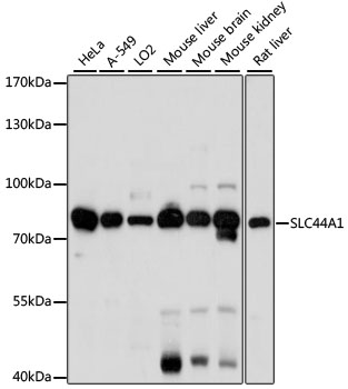 SLC44A1 / CD92 Antibody - Western blot analysis of extracts of various cell lines, using SLC44A1 antibody at 1:1000 dilution. The secondary antibody used was an HRP Goat Anti-Rabbit IgG (H+L) at 1:10000 dilution. Lysates were loaded 25ug per lane and 3% nonfat dry milk in TBST was used for blocking. An ECL Kit was used for detection and the exposure time was 30s.