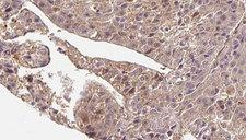SLC4A7 Antibody - 1:100 staining human liver carcinoma tissues by IHC-P. The sample was formaldehyde fixed and a heat mediated antigen retrieval step in citrate buffer was performed. The sample was then blocked and incubated with the antibody for 1.5 hours at 22°C. An HRP conjugated goat anti-rabbit antibody was used as the secondary.