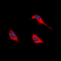 Immunofluorescent analysis of GPR172B staining in HEK293T cells. Formalin-fixed cells were permeabilized with 0.1% Triton X-100 in TBS for 5-10 minutes and blocked with 3% BSA-PBS for 30 minutes at room temperature. Cells were probed with the primary antibody in 3% BSA-PBS and incubated overnight at 4 deg C in a humidified chamber. Cells were washed with PBST and incubated with a DyLight 594-conjugated secondary antibody (red) in PBS at room temperature in the dark. DAPI was used to stain the cell nuclei (blue).