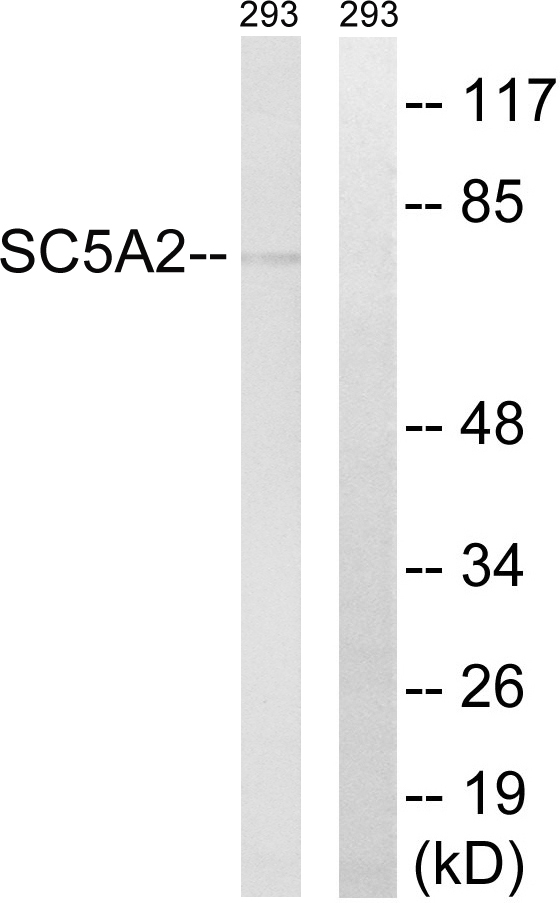 SLC5A2 / SGLT2 Antibody - Western blot analysis of lysates from 293 cells, using SLC5A2 Antibody. The lane on the right is blocked with the synthesized peptide.