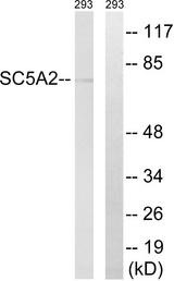 Western blot analysis of lysates from 293 cells, using SLC5A2 Antibody. The lane on the right is blocked with the synthesized peptide.