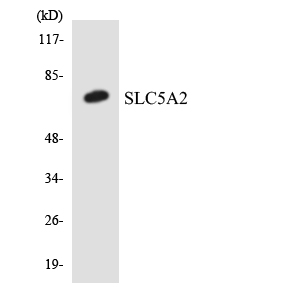 SLC5A2 / SGLT2 Antibody - Western blot analysis of the lysates from Jurkat cells using SLC5A2 antibody.