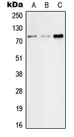SLC5A2 / SGLT2 Antibody - Western blot analysis of SGLT2 expression in HeLa (A); SP2/0 (B); H9C2 (C) whole cell lysates.