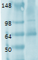 SLC5A5 / NIS Antibody - Western blot analysis of Sodium Iodide Symporter, Clone FP5, tested on human retina lysate, using a 1:1000 dilution of SLC5A5 / NIS antibody.  This image was taken for the unconjugated form of this product. Other forms have not been tested.