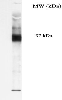 SLC5A5 / NIS Antibody - COS-7 cells transfected with human NIS (Castro et al. 1999 J Clin Endocrinology & Metabolism 84: 2957)