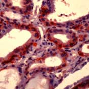 SLC5A5 / NIS Antibody - Formalin-fixed, paraffin-embedded human thyroid gland stained with peroxidase-conjugate and AEC chromogen. Note cytoplasmic staining of follicular epithelium.  This image was taken for the unmodified form of this product. Other forms have not been tested.