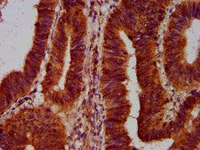 SLC5A5 / NIS Antibody - Immunohistochemistry Dilution at 1:500 and staining in paraffin-embedded human colon cancer performed on a Leica BondTM system. After dewaxing and hydration, antigen retrieval was mediated by high pressure in a citrate buffer (pH 6.0). Section was blocked with 10% normal Goat serum 30min at RT. Then primary antibody (1% BSA) was incubated at 4°C overnight. The primary is detected by a biotinylated Secondary antibody and visualized using an HRP conjugated SP system.