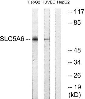 SLC5A6 / SMVT Antibody - Western blot analysis of lysates from HepG2 and HUVEC cells, using SLC5A6 Antibody. The lane on the right is blocked with the synthesized peptide.