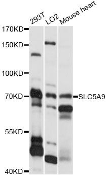 SLC5A9 / SGLT4 Antibody - Western blot analysis of extracts of various cell lines, using SLC5A9 antibody at 1:1000 dilution. The secondary antibody used was an HRP Goat Anti-Rabbit IgG (H+L) at 1:10000 dilution. Lysates were loaded 25ug per lane and 3% nonfat dry milk in TBST was used for blocking. An ECL Kit was used for detection and the exposure time was 30s.