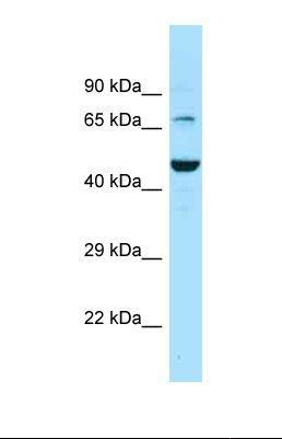 Western blot of Human PANC1 . SLC6A11 antibody dilution 1.0 ug/ml.  This image was taken for the unconjugated form of this product. Other forms have not been tested.