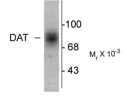 SLC6A3 / Dopamine Transporter Antibody - Western blot of human caudate lysate showing specific immunolabeling of the ~88k DAT protein.