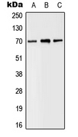 SLC6A8 Antibody - Western blot analysis of SLC6A8 expression in MDAMB435 (A); Raw264.7 (B); H9C2 (C) whole cell lysates.