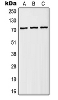Western blot analysis of NHE6 expression in HEK293T (A); Raw264.7 (B); PC12 (C) whole cell lysates.