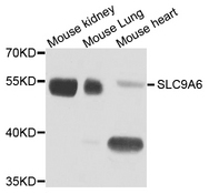 SLC9A6 Antibody - Western blot analysis of extract of various cells.