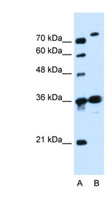 SLC9A7 antibody LS-C40446 Western blot of Jurkat lysate.  This image was taken for the unconjugated form of this product. Other forms have not been tested.