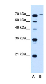 SLCO6A1 antibody ARP44138_T100-NP_775759-SLCO6A1(solute carrier organic anion transporter family, member 6A1) Antibody Western blot of Jurkat lysate.  This image was taken for the unconjugated form of this product. Other forms have not been tested.