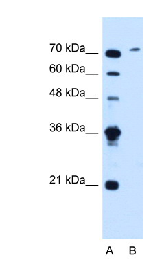 SLCO6A1 antibody LS-C40451 Western blot of Jurkat lysate.  This image was taken for the unconjugated form of this product. Other forms have not been tested.