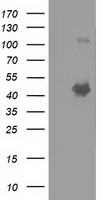 SLFNL1 Antibody - HEK293T cells were transfected with the pCMV6-ENTRY control (Left lane) or pCMV6-ENTRY SLFNL1 (Right lane) cDNA for 48 hrs and lysed. Equivalent amounts of cell lysates (5 ug per lane) were separated by SDS-PAGE and immunoblotted with anti-SLFNL1.