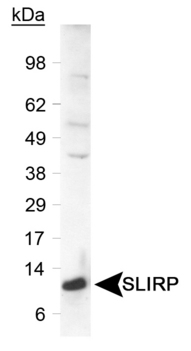 Detection of SLIRP protein in a human liver lysate. Primary was used at 0.6 ug/ml.  This image was taken for the unconjugated form of this product. Other forms have not been tested.