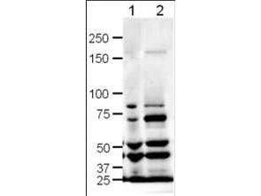 Anti-SLIT-1 Antibody - Western Blot. Western blot of Affinity Purified anti-SLIT-1 antibody shows detection of SLIT-1 in rat (lane 1) and mouse (lane 2) brain lysates. The expected molecular weight for SLIT-1 is 168 kD. Approximately 20 ug of each lysates was run on a SDS-PAGE and transferred onto nitrocellulose followed by reaction with a 1:500 dilution of anti-SLIT-1 antibody. Signal was detected using standard techniques. Note: The smaller strong bands observed in this blot are likely SLIT-1 cleavage products. A number of cleavage products for both Slit1 and Slit2 are reported in the literature resulting from alternate splicing and range from ~40kD -160kD (see Little et al, 2002 (Int J Dev Biol. 2002;46(4):385-91) for additional details regarding SLIT1 alternative splicing).