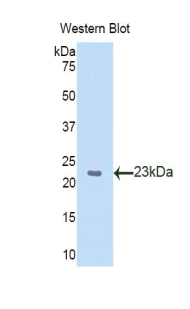 Western blot of recombinant SLIT2 / SLIT-2.  This image was taken for the unconjugated form of this product. Other forms have not been tested.