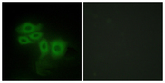 Immunofluorescence analysis of HepG2 cells, using SLK Antibody. The picture on the right is blocked with the synthesized peptide.