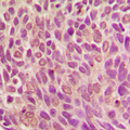 Immunohistochemical analysis of SMAD1 (pS187) staining in human breast cancer formalin fixed paraffin embedded tissue section. The section was pre-treated using heat mediated antigen retrieval with sodium citrate buffer (pH 6.0). The section was then incubated with the antibody at room temperature and detected using an HRP conjugated compact polymer system. DAB was used as the chromogen. The section was then counterstained with hematoxylin and mounted with DPX.
