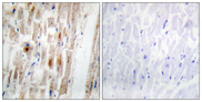 Immunohistochemistry analysis of paraffin-embedded human heart, using Smad1 (Phospho-Ser465) Antibody. The picture on the right is blocked with the phospho peptide.