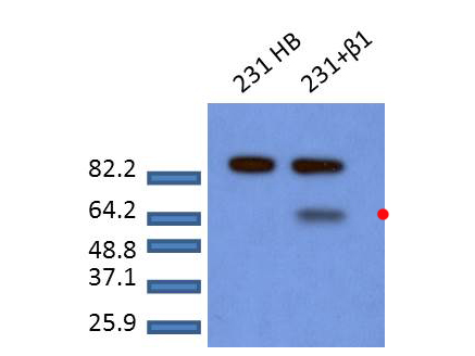 SMAD2 Antibody - Western Blot of rabbit anti-Smad2 pS465pS467 antibody. Lane 1: MDA-MB-231 cells. Lane 2: MDA-MB-231 cells treated with TGF-ß1 for 1h. Load: 20 µg per lane. Primary antibody: Smad2pS465pS467 antibody at 1:1000 for overnight at 4°C. Secondary antibody: rabbit secondary antibody at 1:10,000 for 45 min at RT. Block: 5% BLOTTO/TBST overnight at 4°C. Predicted/Observed size: 52.3 kDa for Smad2pS465pS467. Other band(s): ~85kDa non-specific band.