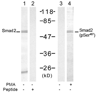 Western blot of extract from 293 cells, untreated or treated with PMA (200 nM, 30 min),. using Rabbit Anti-Smad2 (Ab-467) Polyclonal Antibody (lane 1 and 2) and Rabbit Anti-Smad2 (Phospho-Ser467) Polyclonal Antibody (lane 3 and 4).
