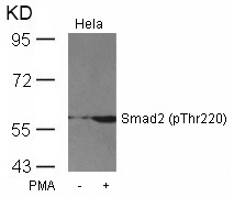 Western blot of extracts from HeLa cells untreated or treated with PMA using Smad2 (Phospho-Thr220) antibody.